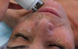RF-лифтинг -безоперационная подтяжка кожи лица, шеи и зоны декольте со скидкой 70%