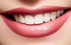 Профессиональное отбеливание зубов – 3600 руб., скидка 51%